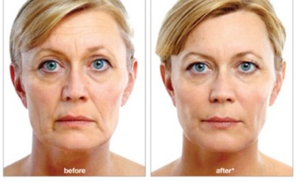 NATURAL-LOOKING, LONG-LASTING FACIAL CONTOURING FILLERS